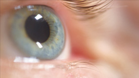 Ophthalmic_Care